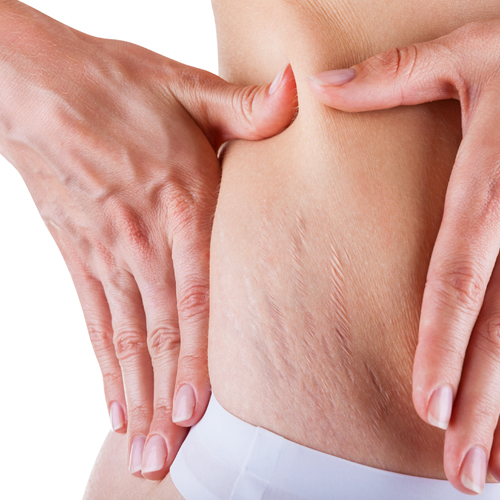 scar stretch marks indication