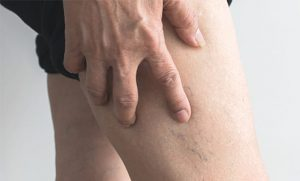 Read more about the article What Are Vascular Lesions