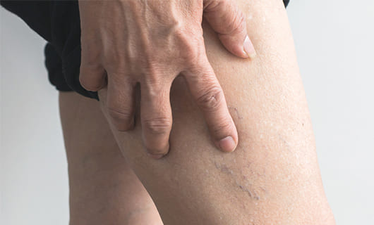 What Are Vascular Lesions